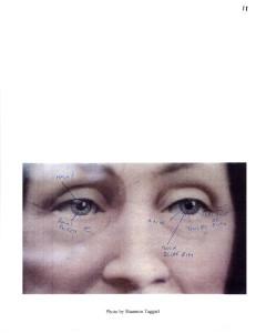 Mrs. Caldwell eye